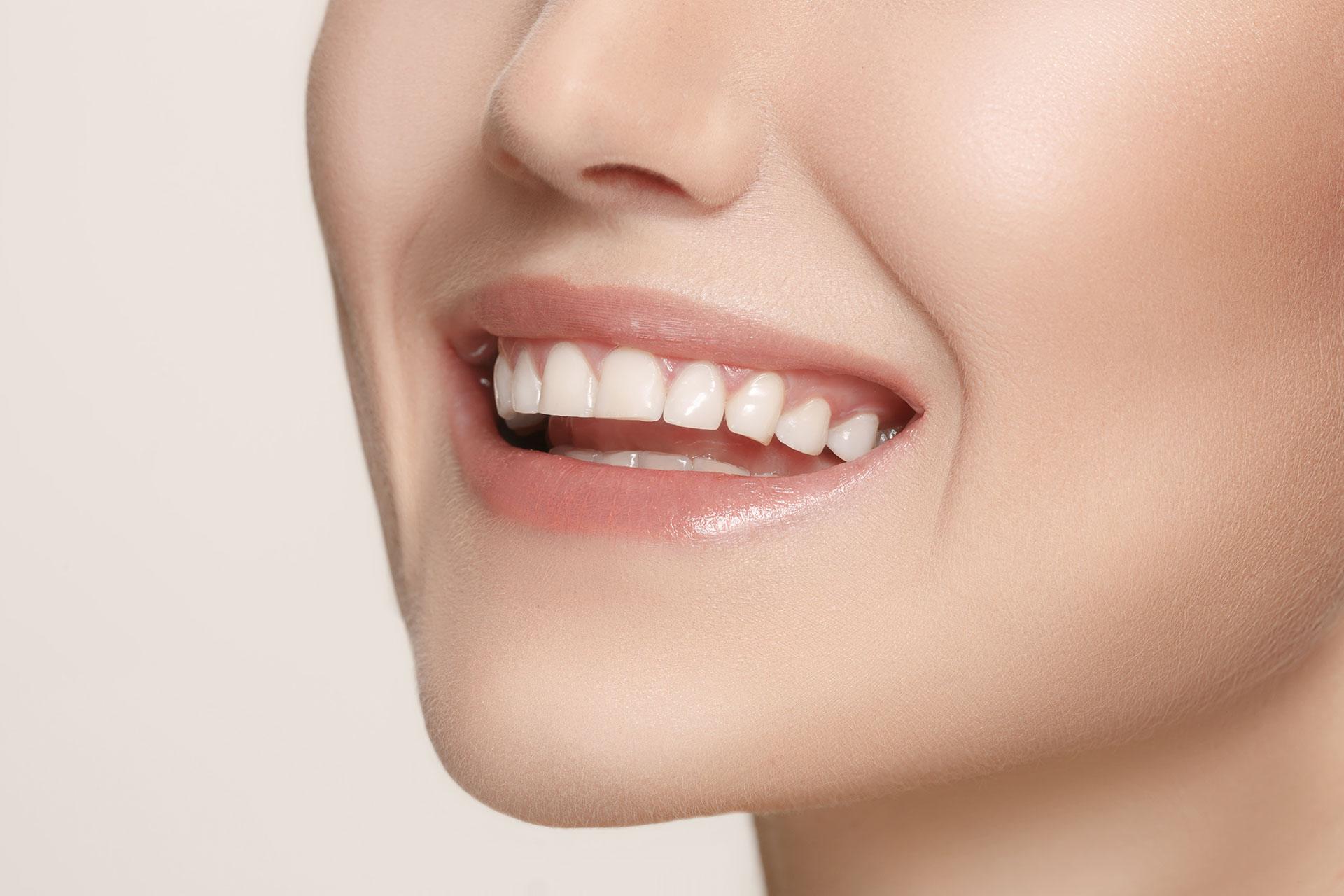 smile assessment 1