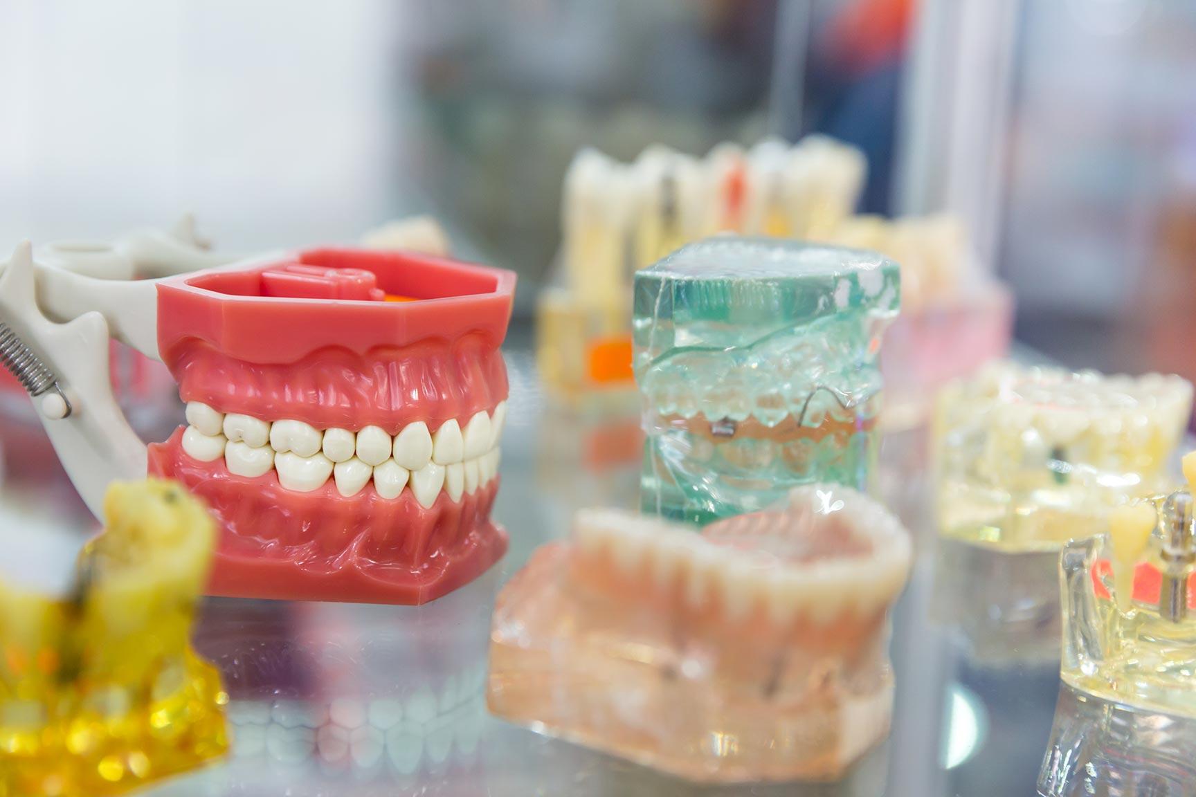 Teeth Misalignments, Overbite, crossbite, teeth spacing