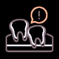 Misaligned Teeth-Malocclusion